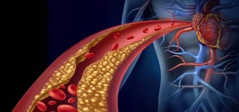 στεφανιαία νόσος καρδιολόγος μαρούσης παναγιώτης αθήνα